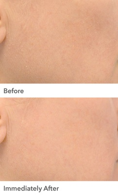 Dr Dennis Gross Professional Grade Resurfacing Liquid Peel